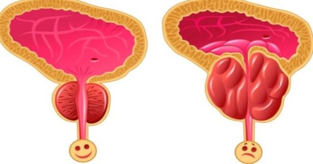 Prostata wielkość zdrowego organu